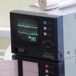 EKG podczas próby wysiłkowej
